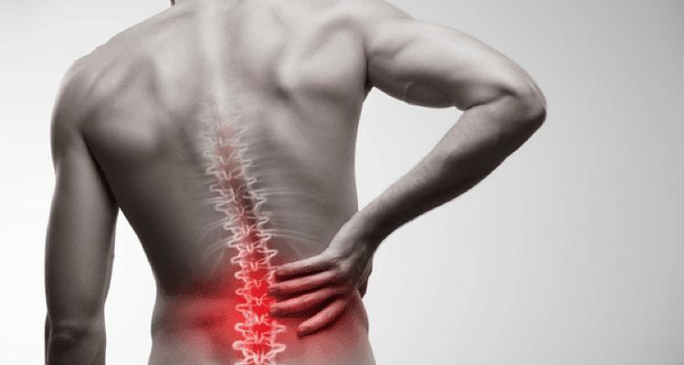 Keeping Lower Back Pain at Bay