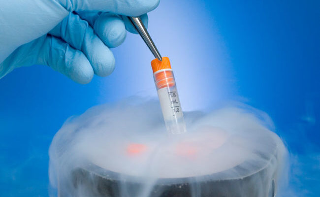 Considering Freezing Your Eggs? Here are the Facts
