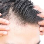 Fascinating Solution To Stop Hair Loss