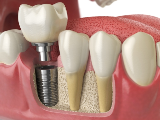 How Much Do Dental Implants Cost? A Price Guide