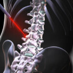 Just How Successful Is Laser Spine Surgery?