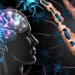 Is CBD oil effective in the treatment of Multiple Sclerosis?