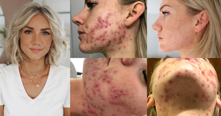 Hormonal cystic acne: Causes, Symptoms, and Proven Remedies