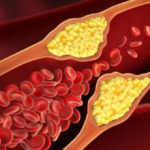 Lowering the Risk of Heart Disease: 5 Lifestyle Changes That Will Help You Manage Your Cholesterol Levels