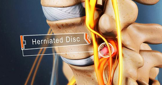 Common Treatment Options For A Herniated Disc