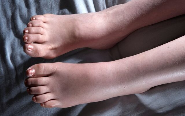 Swollen Leg: There Could be More Than the Swelling