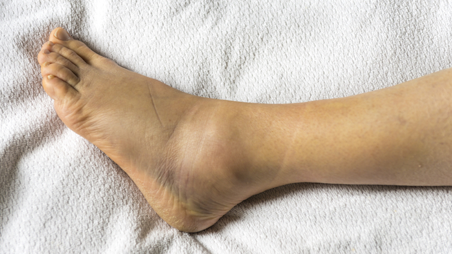4 Steps to Healing a Sprained Ankle