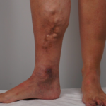 What You Need to Know About Venous Ulcers
