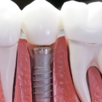 Dental Implants: Types, Benefits and Where to Get Help
