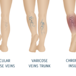 How to Prevent Venous Leg Ulcers