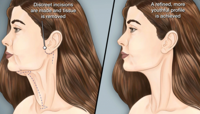 4 Issues That Can Be Addressed With A Neck Lift Procedure