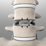 Spine and Artificial Disk Treatment: The Gold Standard in Spine Treatment