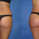 What You Should Expect After a Butt Lift Procedure