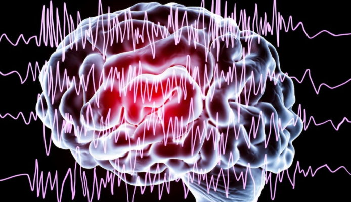 What is Epilepsy and How to Deal with It?