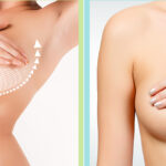 Reshape Your Breasts with Breast Lift Surgery in New Jersey