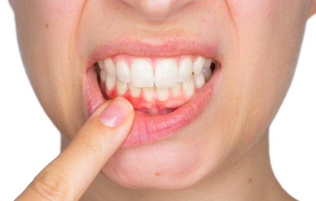 Gum Disease: Causes, Risk Factors, and Symptoms
