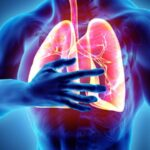 Why does a doctor prescribe Advair Diskus for lung diseases?