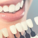 Top Reasons to Embrace Cosmetic Dentistry