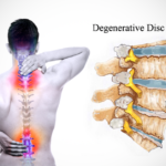 Things You Should Know About Degenerative Disc Disease