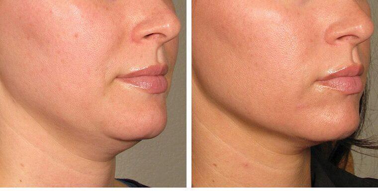 5 Best Skin Tightening Treatments