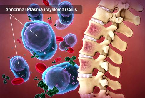 3 Ways to Manage Myeloma Symptoms