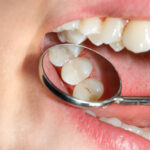 Visible signs that you should think of dental filling right away