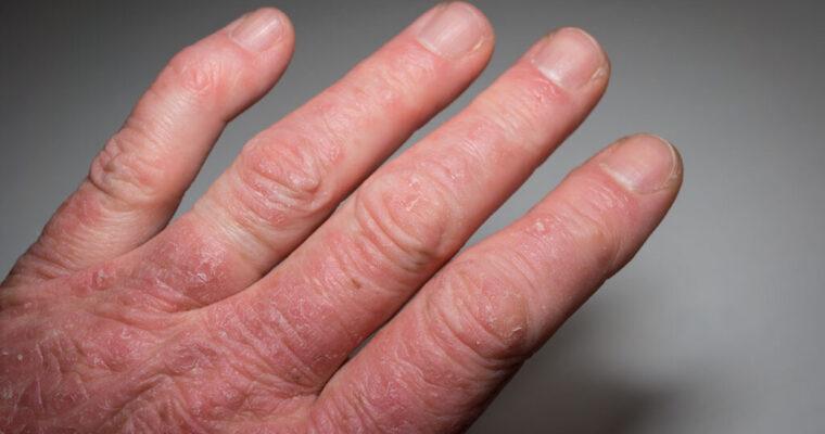 Psoriatic Arthritis: Symptoms, Causes, and Treatment