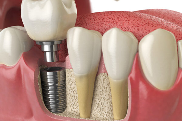 What You Need to Know About Bone Grafting