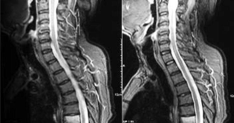 Spondylitis Everyday Struggles – Beyond Back Pain