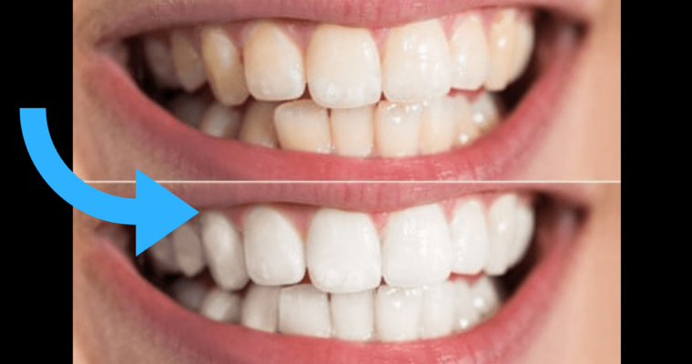 5 Tips on How to Whiten Your Teeth Naturally