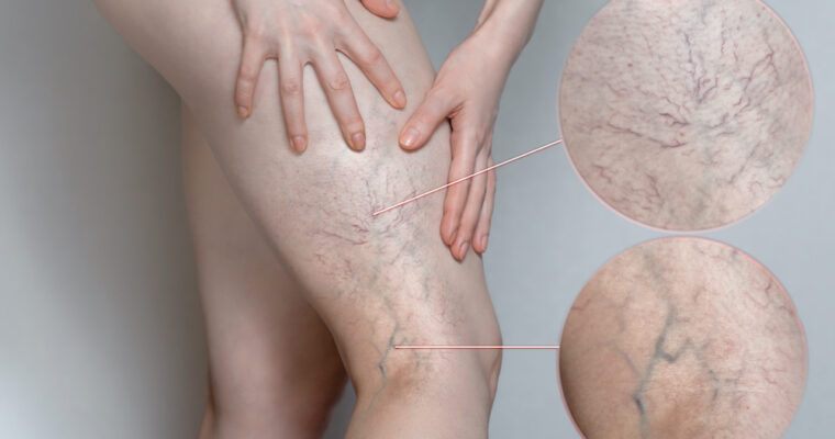 Varicose veins – causes, symptoms, and effective treatments