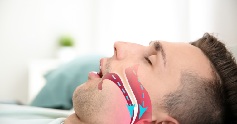 Signs to look out for to Verify if you are Suffering from Sleep Apnea