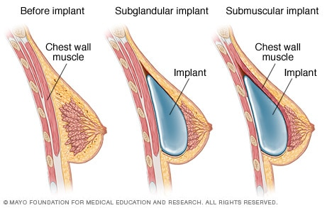 How to Choose the Right Doctor for Breast Augmentation Surgery