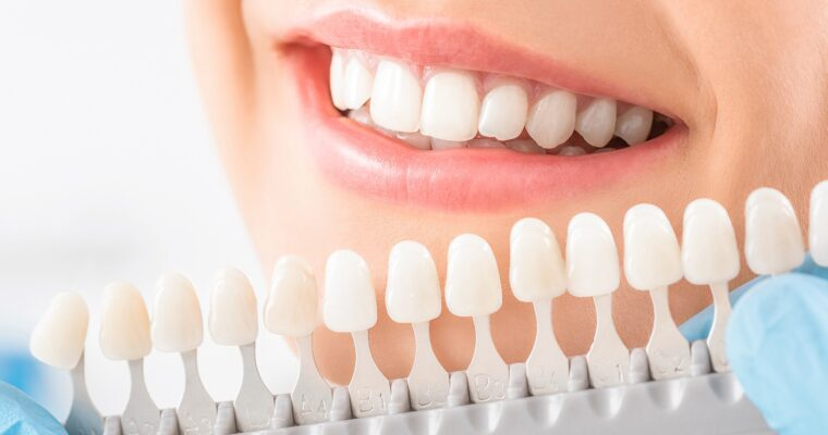 Achieve Symmetrical, Balanced, and Attractive Smiles through Custom-Made Veneers in Florida