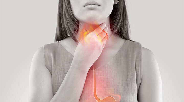 What To Know About Acid Reflux?