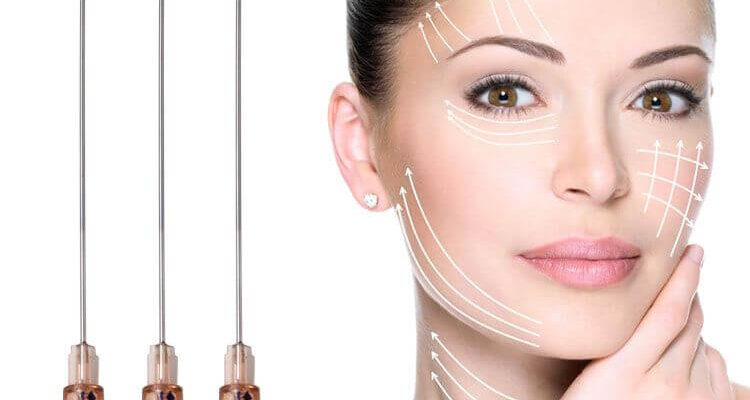 What to Expect During PDO Thread Lift