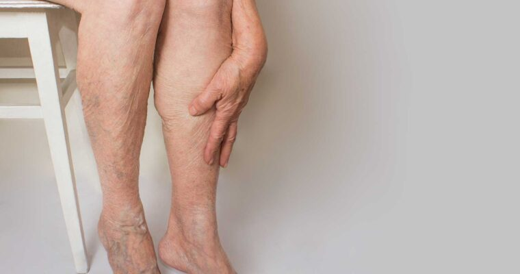 Clearing Common Myths and Misconceptions about Peripheral Artery Disease