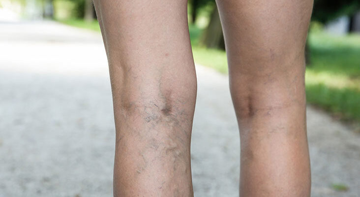 Varicose Veins knowledge for you