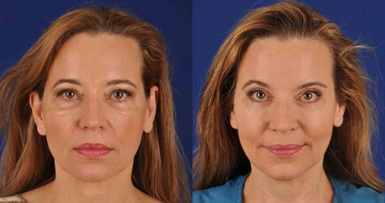 Unlock Your Natural Beauty With Brow Lift Surgery