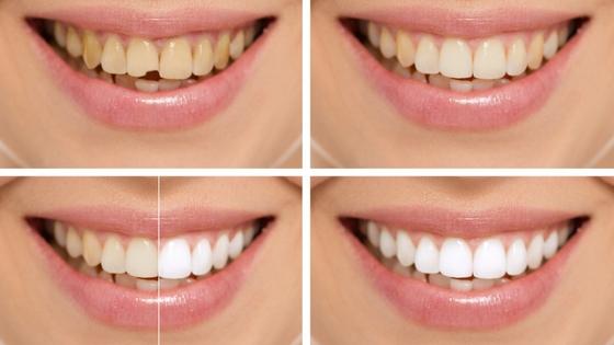 Best Cosmetic Dental Procedures to Improve Your Dental Aesthetic