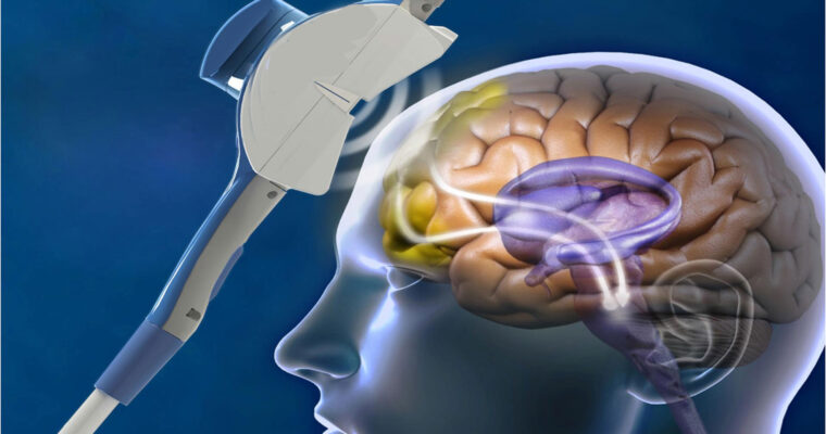 How Effective Is TMS? A Brief Look Into TMS Therapy Success