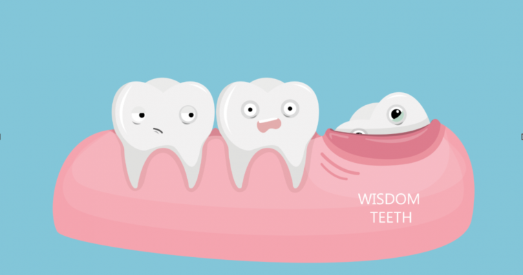 4 Problems That Can Surface if You Delay Wisdom Teeth Removal for Too Long