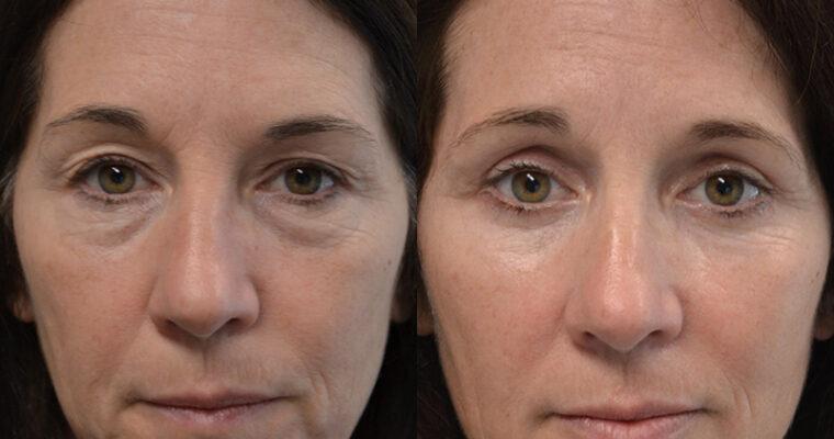 Advantages of Having Eyelid Surgery