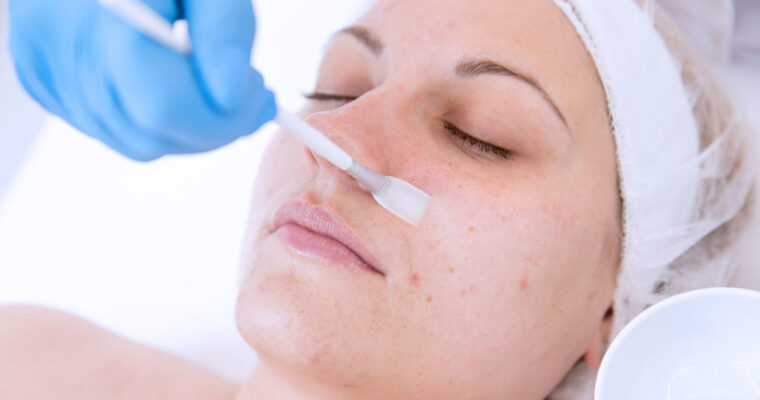 Why You Should Opt For Chemical Peels To Treat Skin Conditions