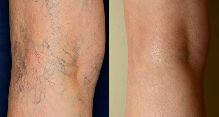 Sclerotherapy: The New Gold-Standard in Treating Spider and Varicose Veins