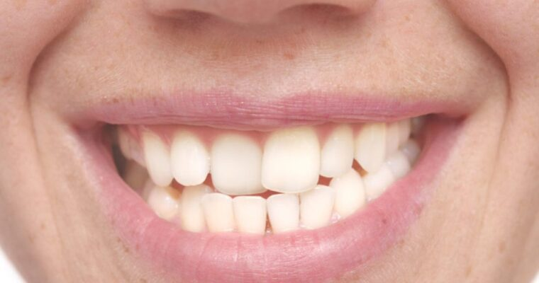 Are Your Teeth Misaligned? Here Are 8 Probable Causes