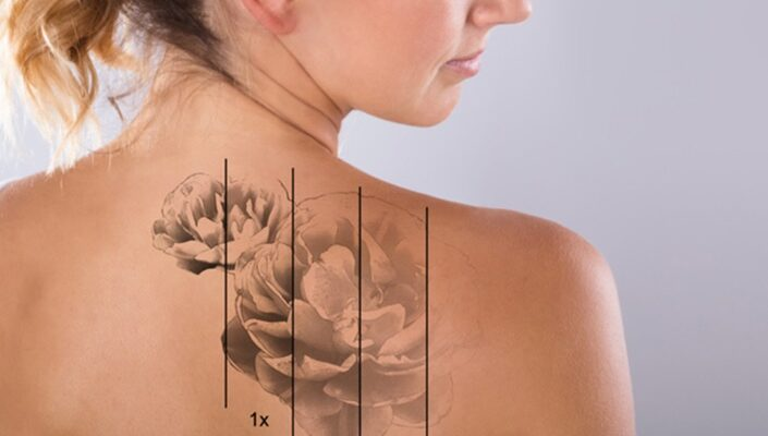 Does Laser Tattoo Removal Work?