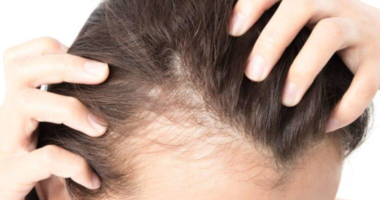 5 Causes of Hair Thinning and 9 Ways to Treat It
