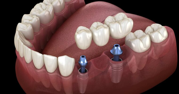 What Is All On 4 Dental Implants