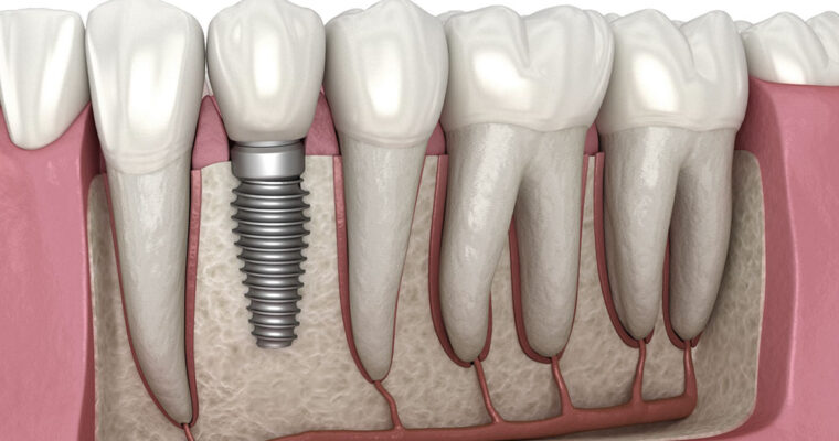 Did you know that Dental Implants Lie under Cosmetic Dentistry?